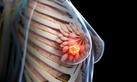 Treating breast cancer before it spreads: study reveals longer potential treatment window